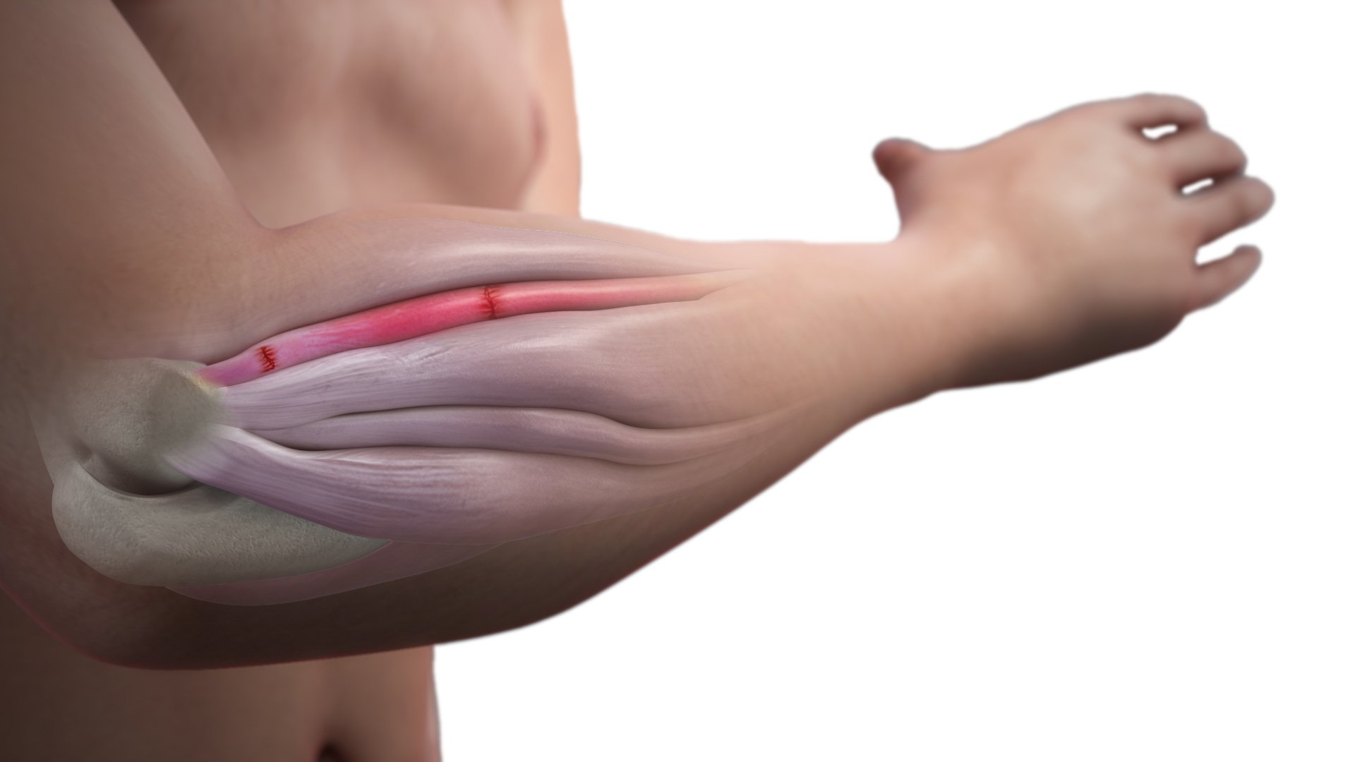 Elbow-pain, Surgical Treatment