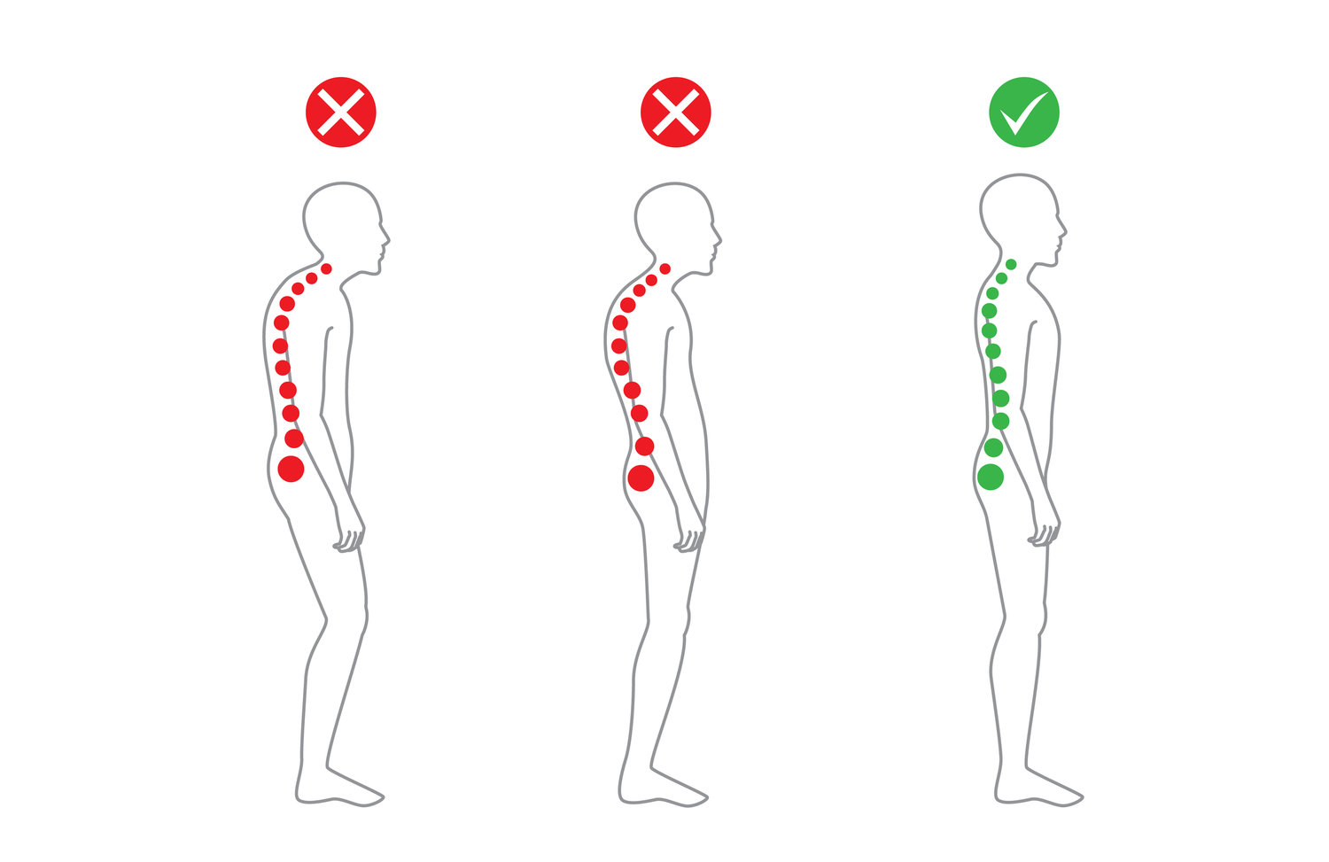 correct-alignment-of-body-in-standing-posture-65182627