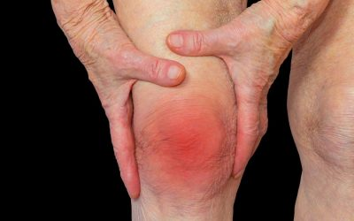 Gentle Arthritis Exercises For Knee Pain