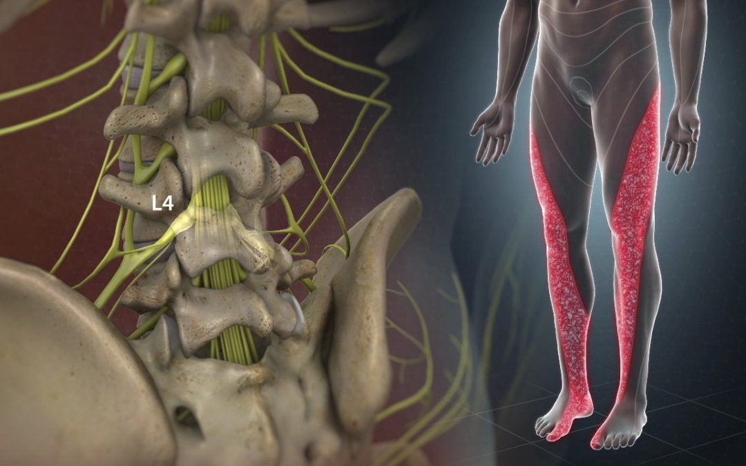 Causes, Symptoms and Treatment of Sciatica