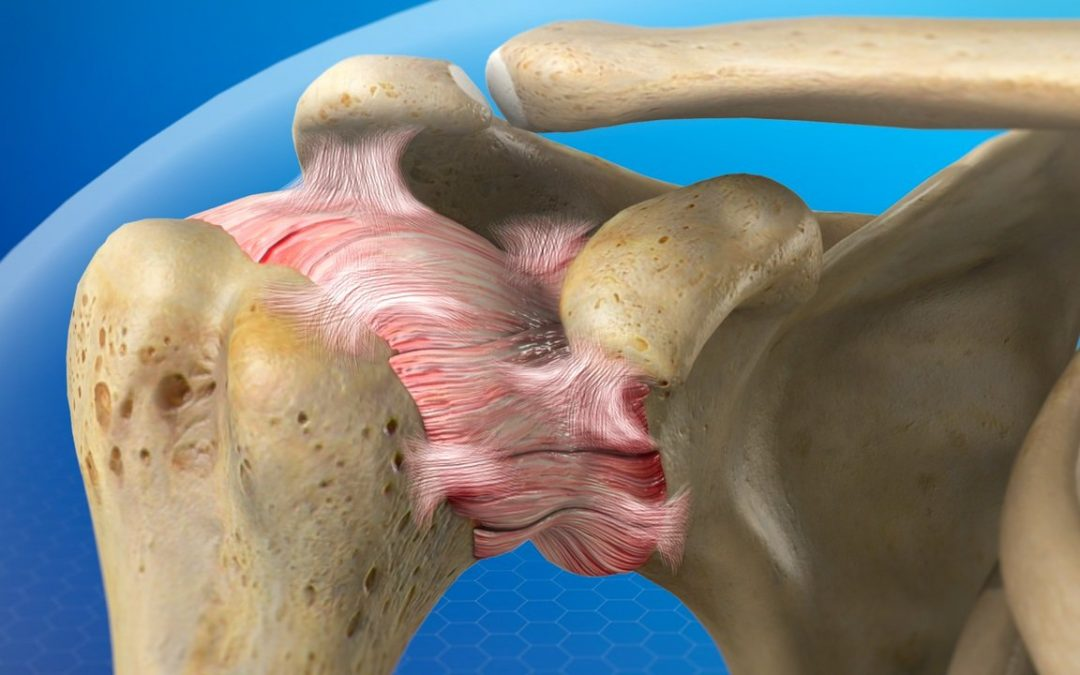 Diabetes and Plantar Fasciitis: What's the Connection?