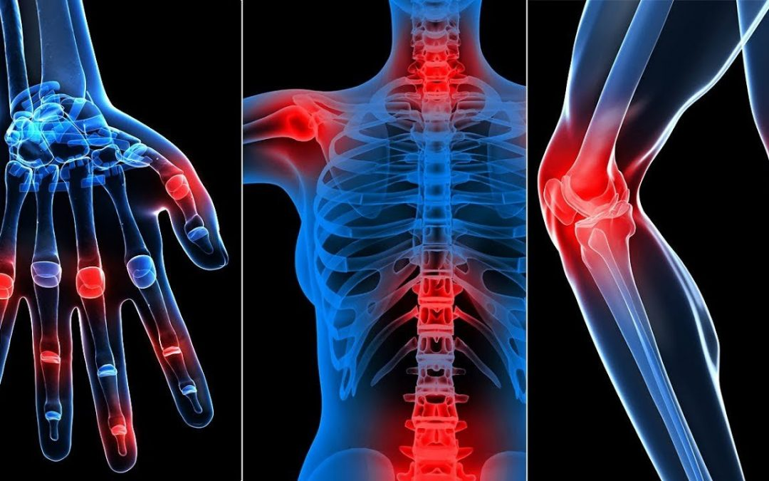 All about Inflammation: Symptoms, Causes and Remedies!
