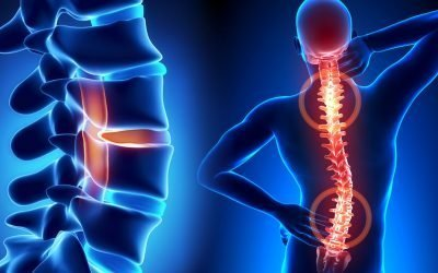 Spine Balancing Exercises to Ease Back Pain