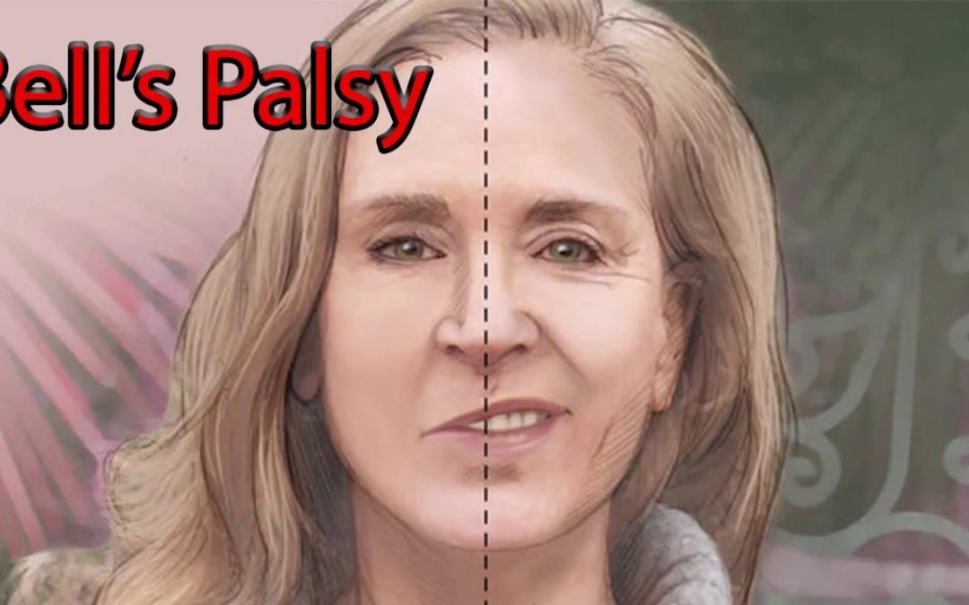 Facial Palsy: What Causes It and How To Deal With It?
